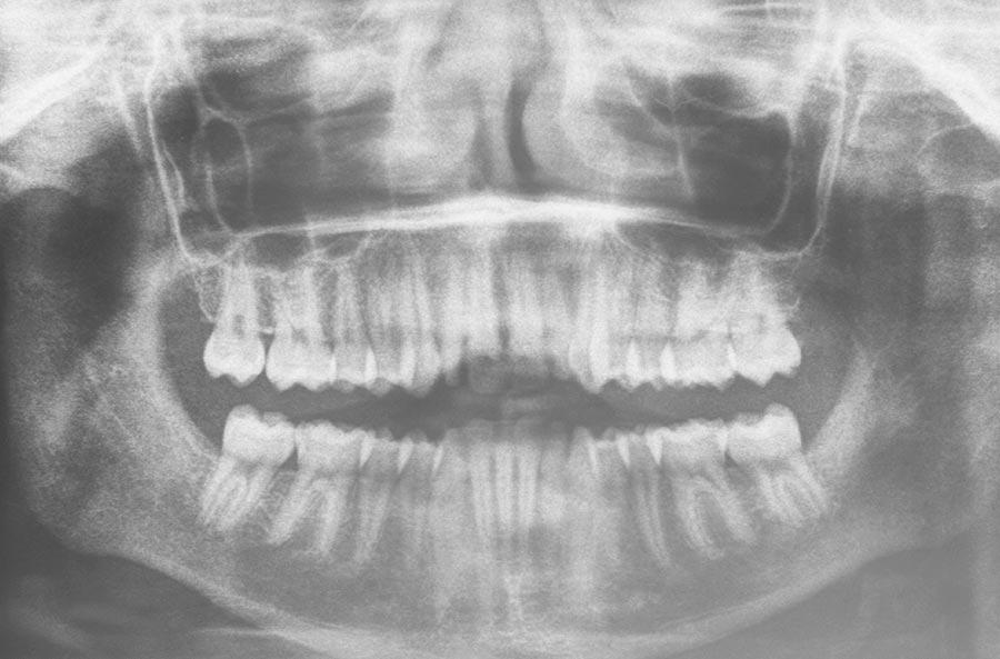 Ortodoncia y cirugía ortognática