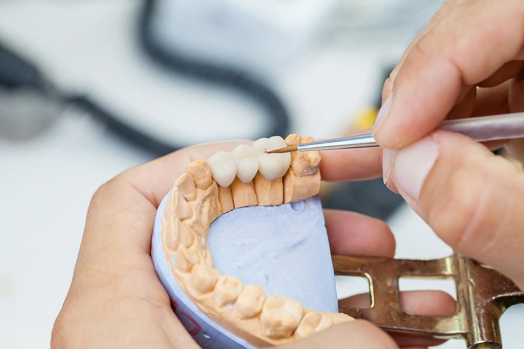 Prótesis dentales en Madrid - Clínica Vilaboa