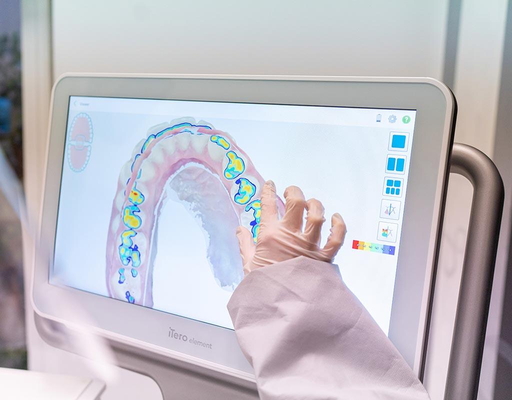 Tratamiento del desgaste dental