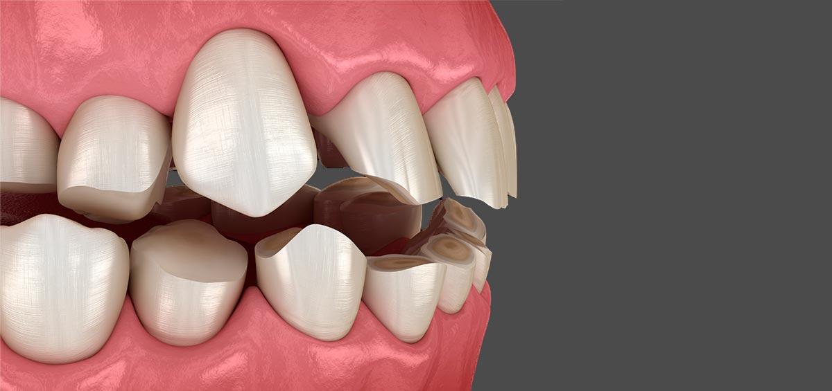 signos que alertan de la existencia de un desgaste dental severo